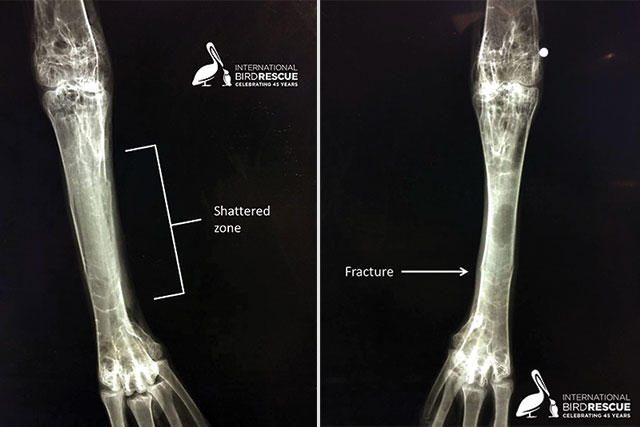 X-rays of American White Pelican with broken legs in care at International Bird Rescue